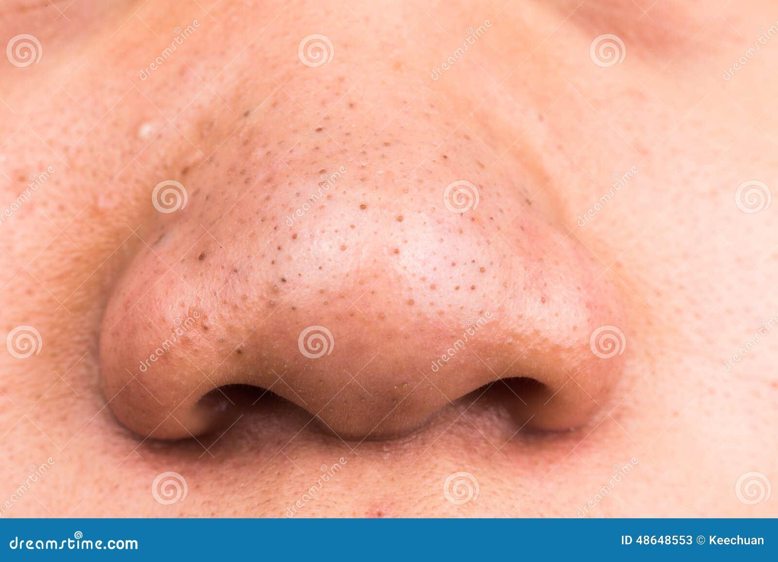 Quello che i pacchi di faccia possono esser fatti di anguille