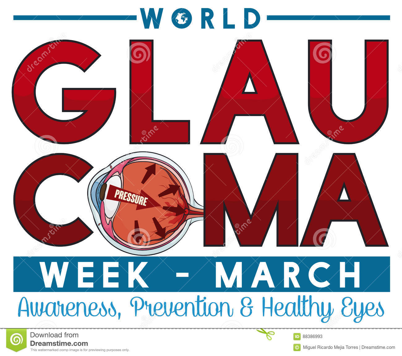 Commemorative Design for Glaucoma Week in March with Sick Eye, Vector Illustration