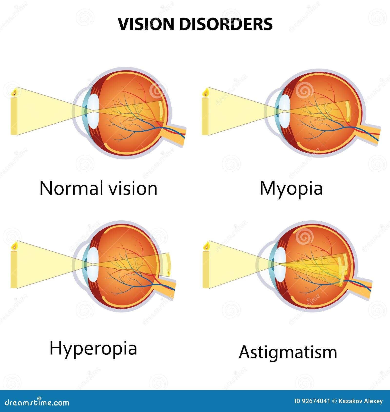Asztigmatizmus vagy hyperopia - Hogyan ismerjük fel a leggyakoribb szembetegségeket?