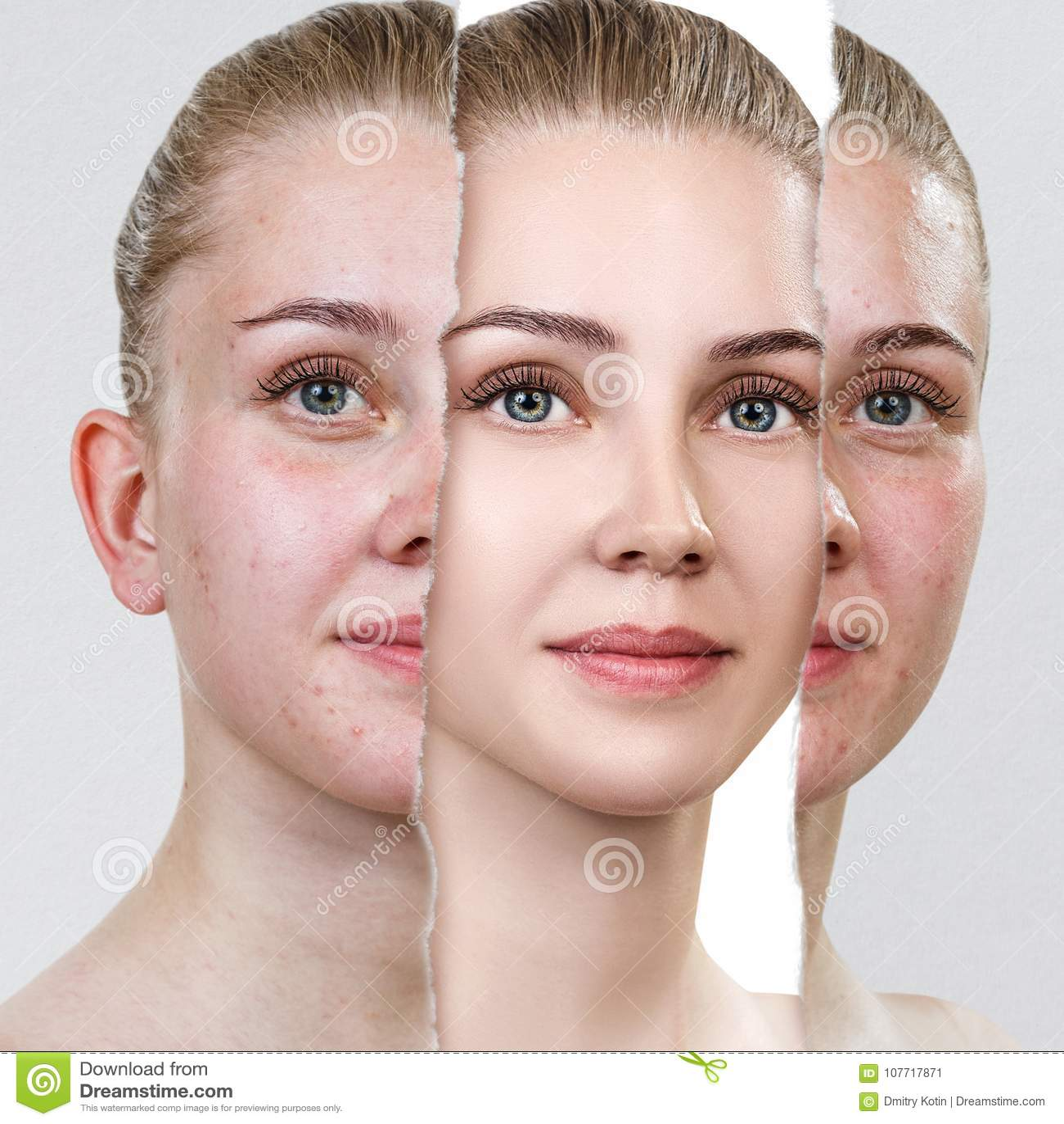 Compare da foto velha com a acne e a pele saudável nova