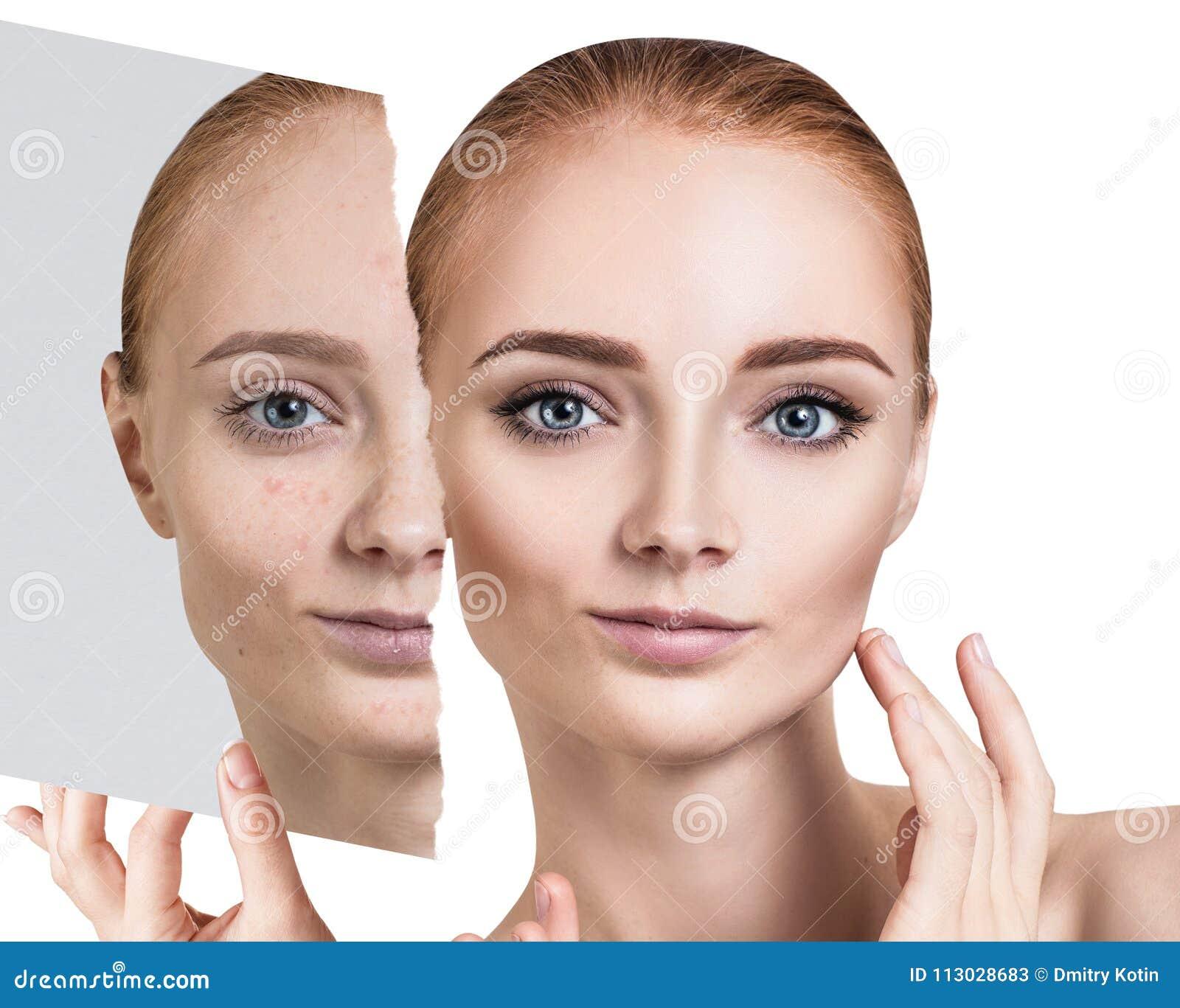 Compare de la foto vieja con acné y nueva piel sana