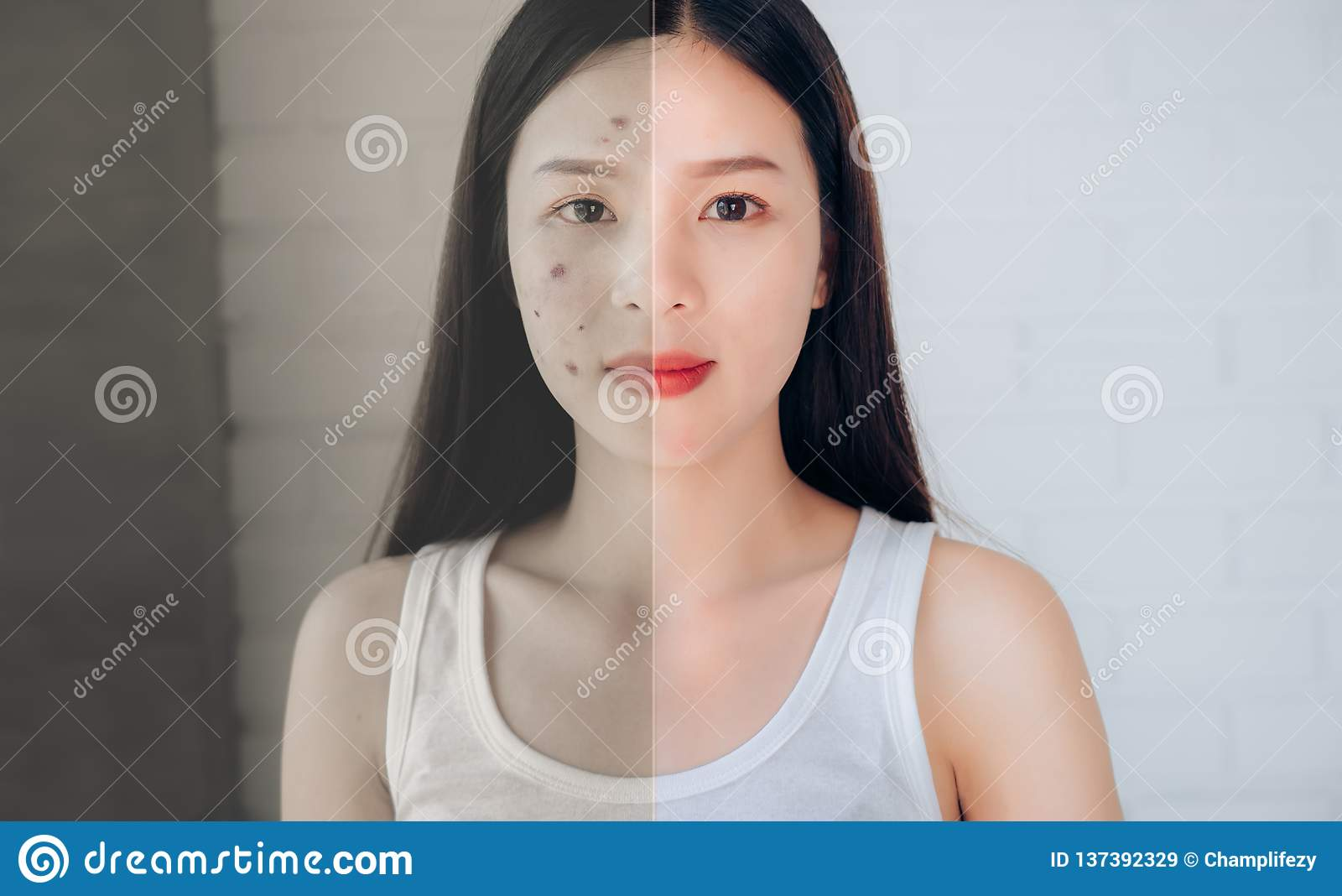Comparison of Asian Woman Acne Face and After Clean Face