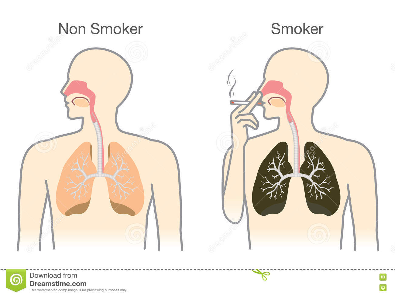 comparison between smokers and non smokers essay Smoking cause and effect essay   smokers experience more coughs and colds as compared to non- smokers.