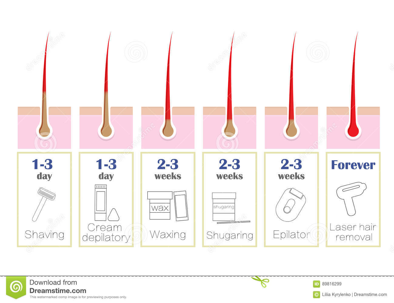 Diagram Comparison Of The Popular Methods Of Hair Removal Laser