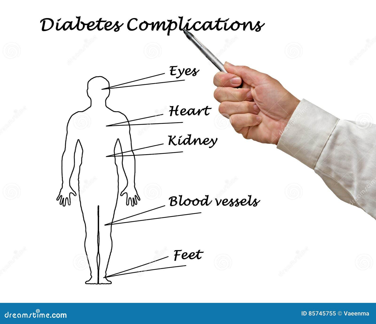 Complicaciones De La Diabetes Imagen de archivo - Imagen de pointing ...