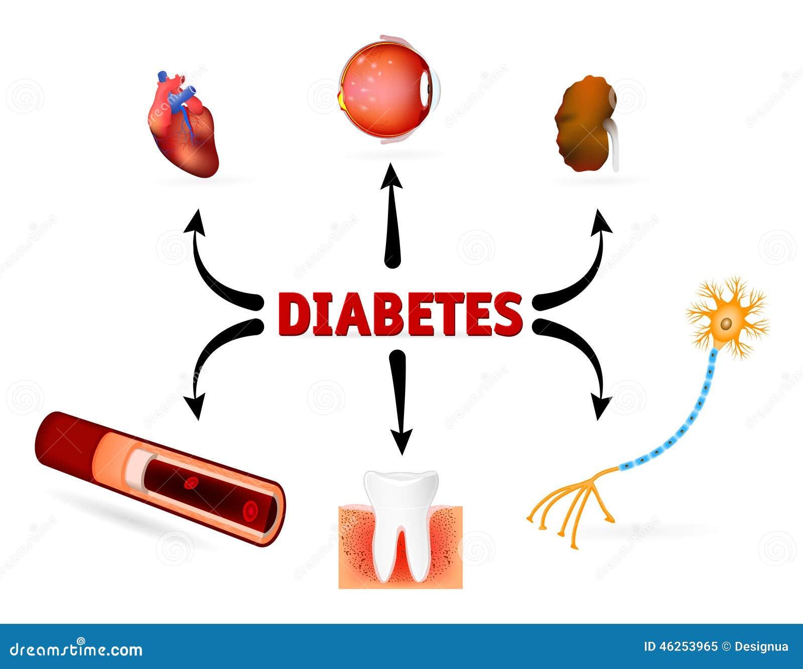 tipo de diabetes adistem
