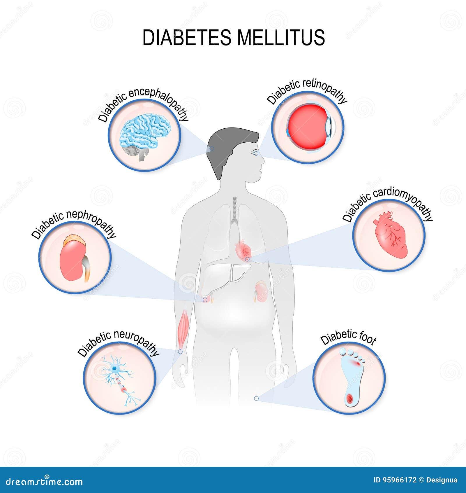 Complicaciones De La Diabetes Mellitus Ilustración del