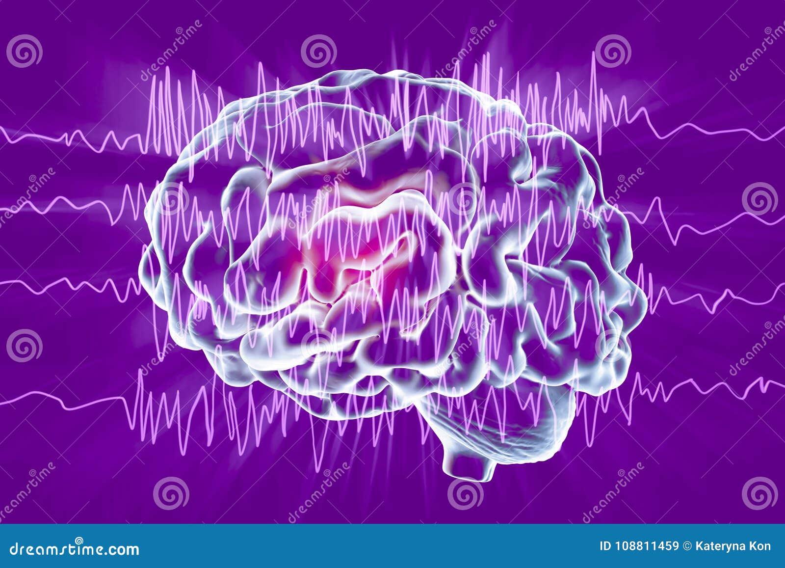 Concept de conscience d épilepsie