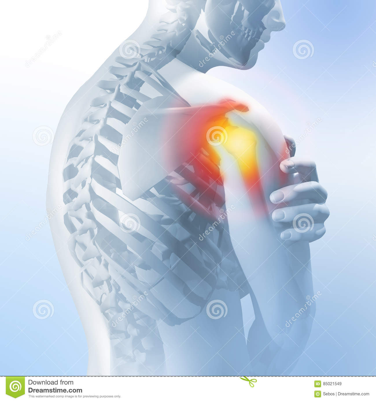 Concept Of Shoulder Pain. Transparency Of The Skeleton And Body. 3d ...