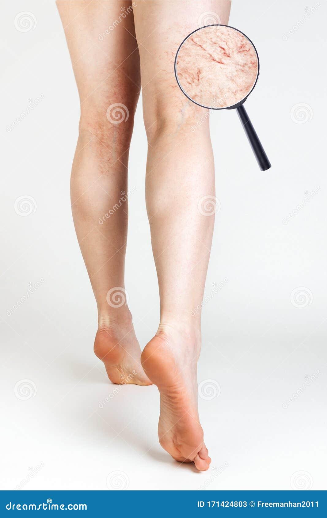 vasculare varicose veil utuba)