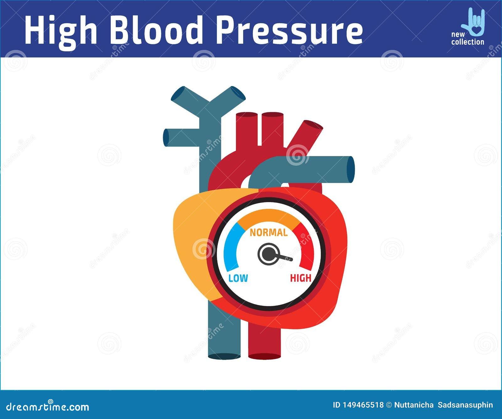 Concepto arterial de la comprobación de tensión arterial alta dise?o plano de la historieta del icono del ejemplo del vector