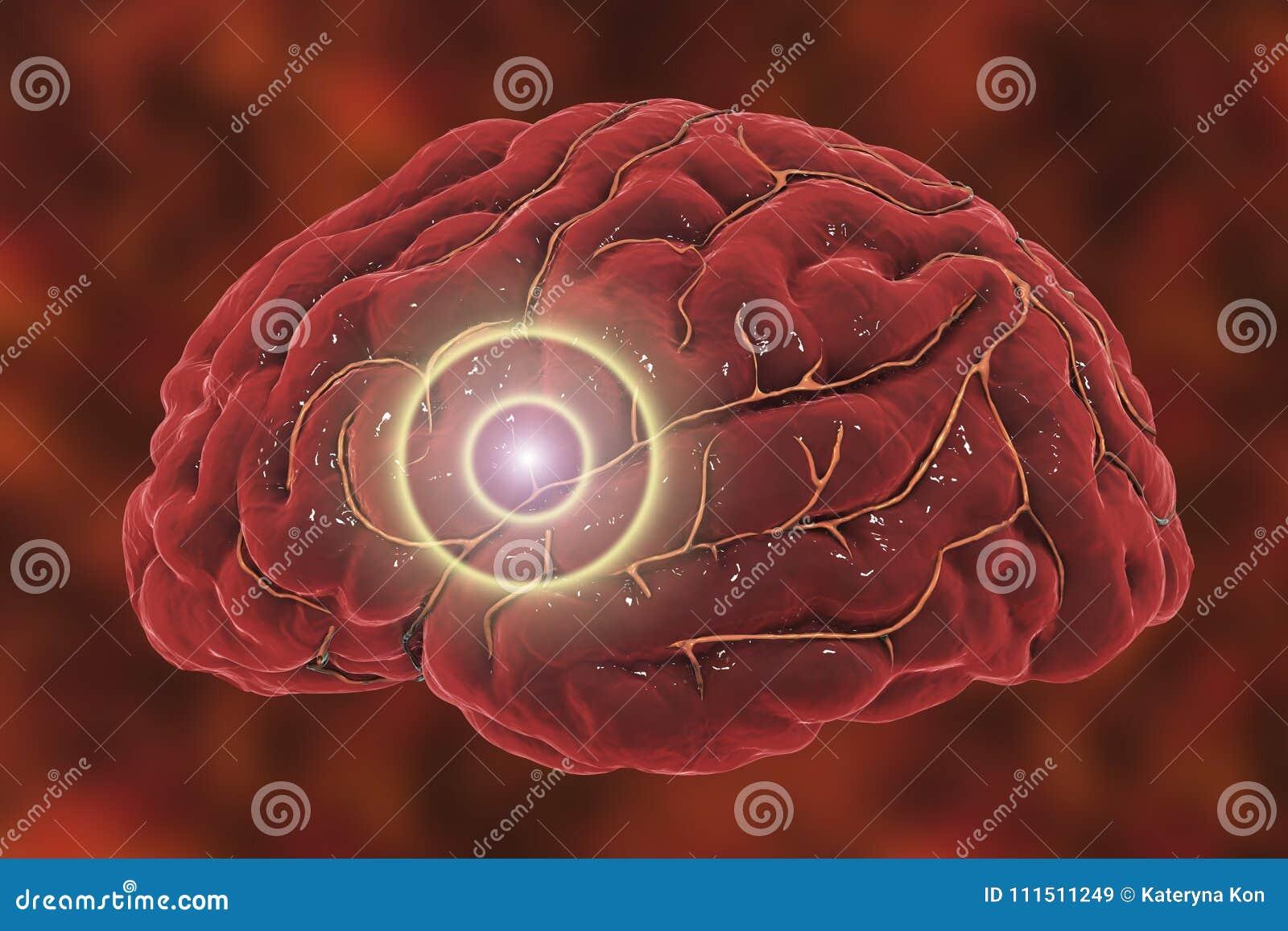 Concepto del movimiento del cerebro