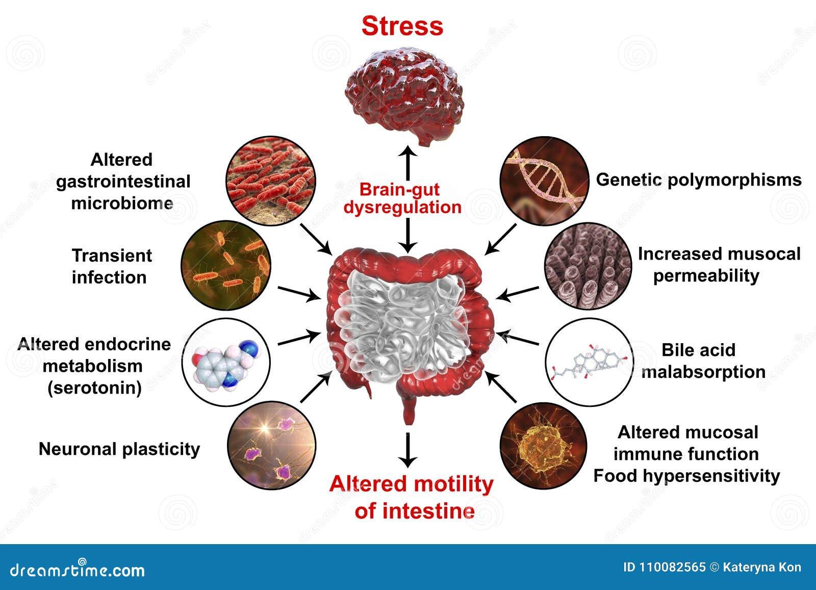 Concepto médico irritable del síndrome de intestino IBS