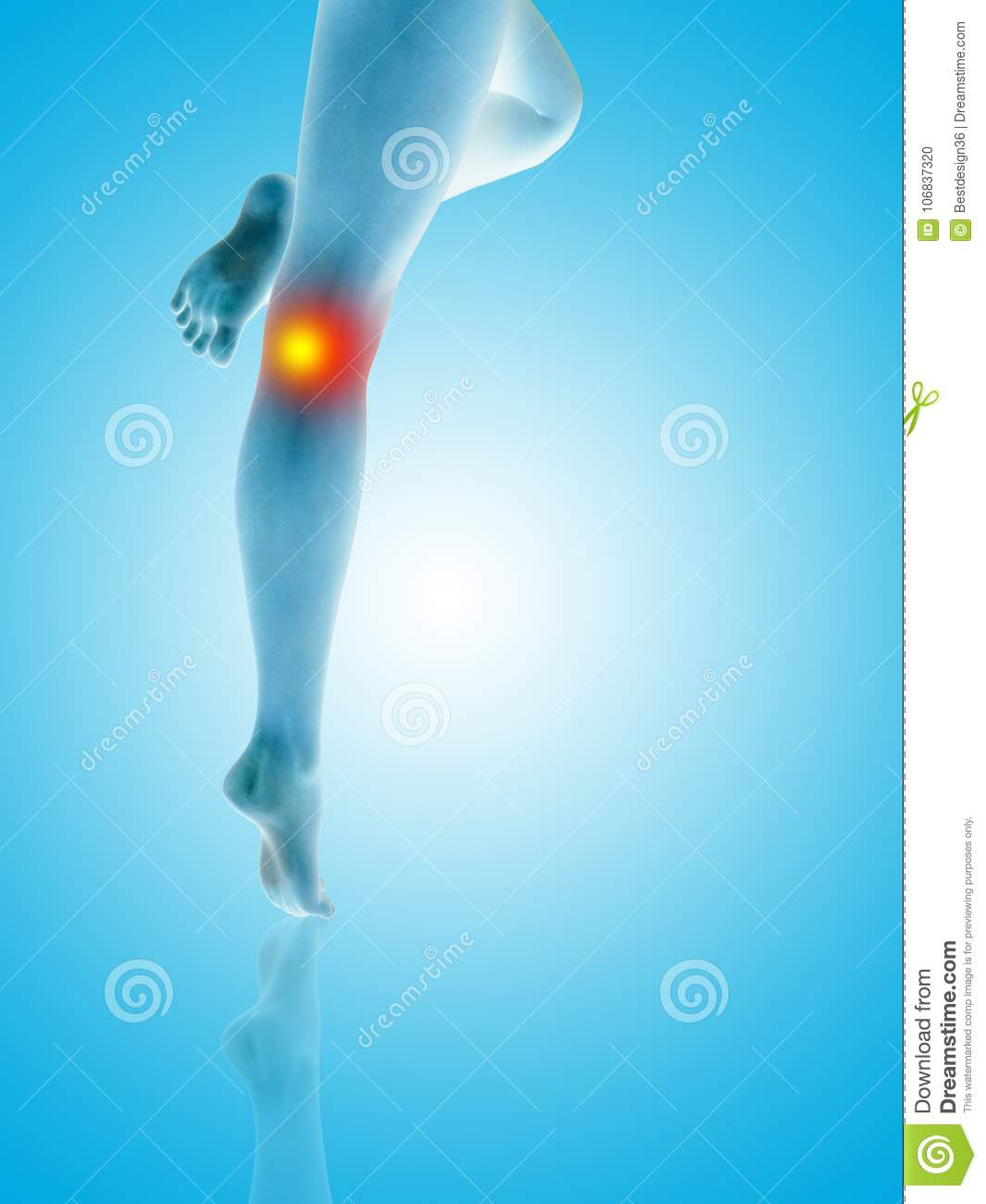 c8df7d3b121 Conceptual beautiful woman or girl legs and feet with a hurt knee pain or  ache closeup