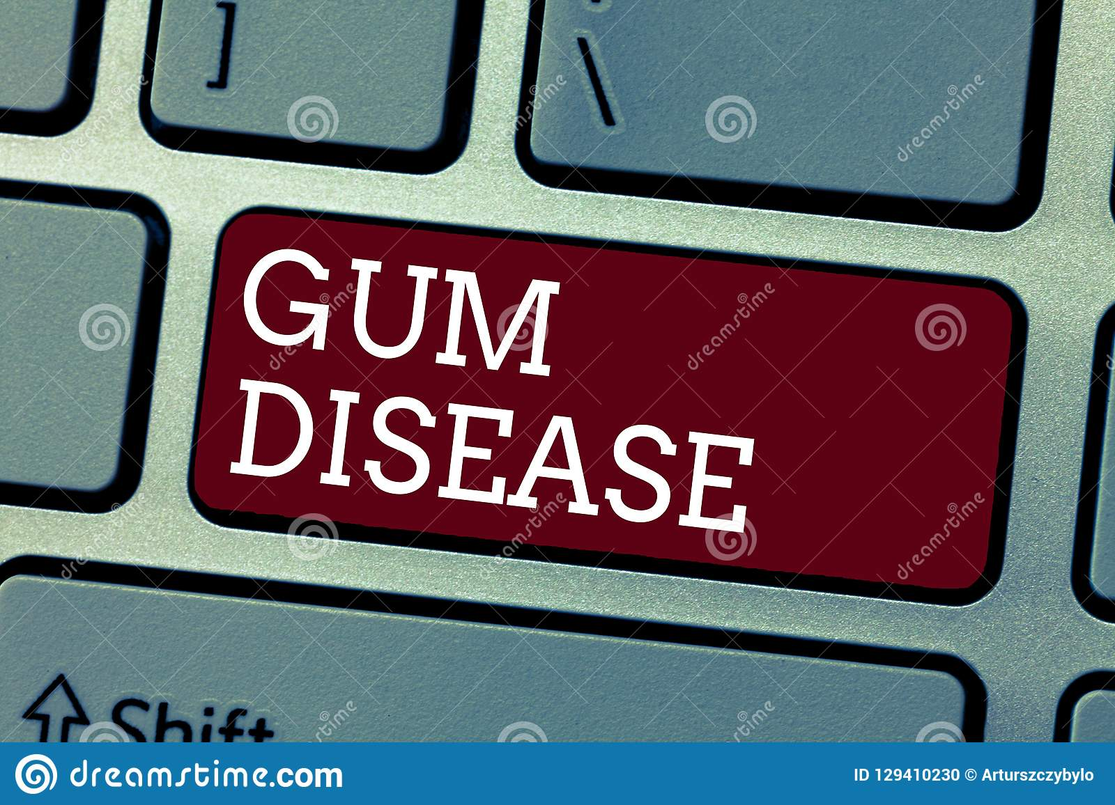 Conceptual hand writing showing Gum Disease. Business photo showcasing Inflammation of the soft tissue Gingivitis