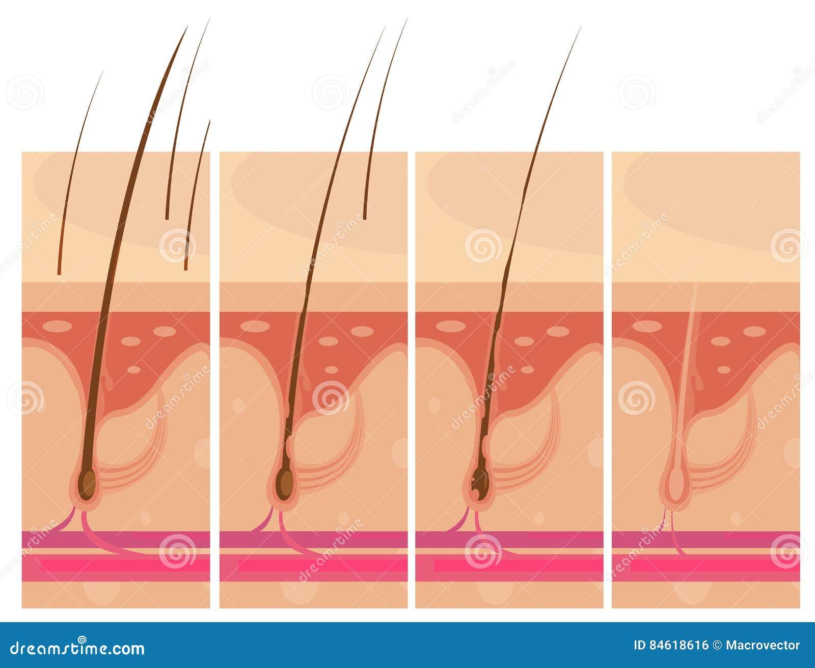 Concetto della pelle di perdita di capelli