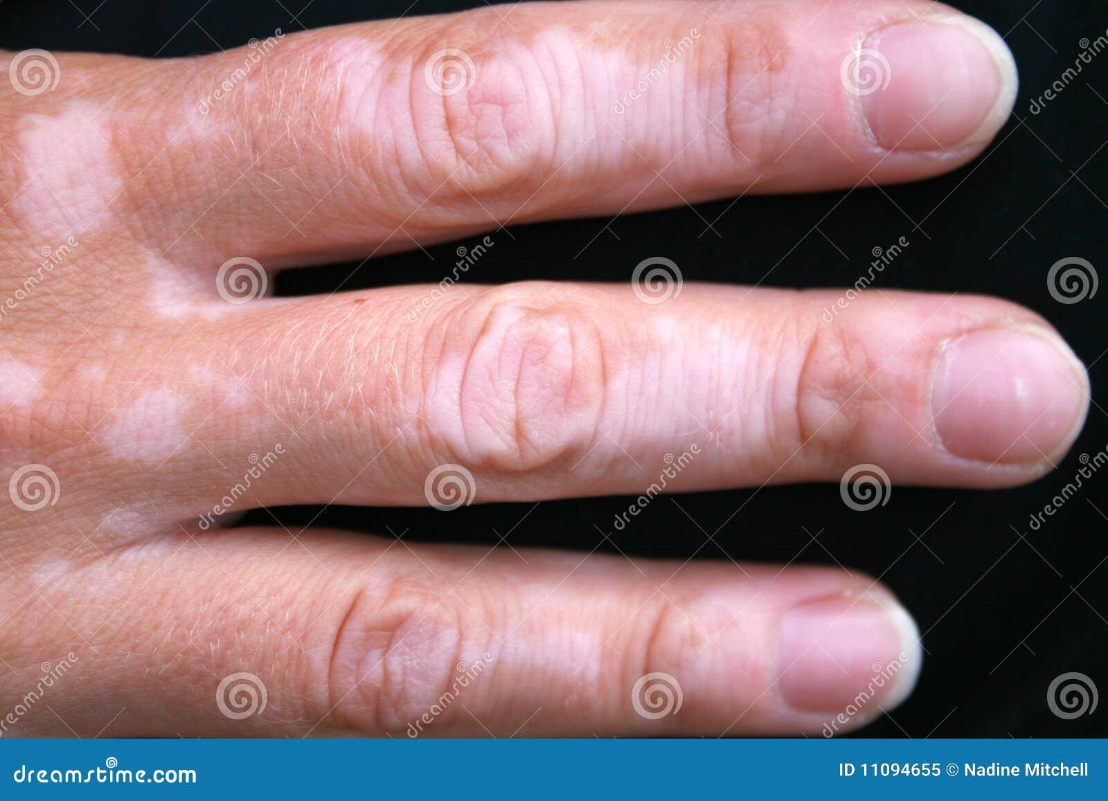 fotos de piel con vitiligo