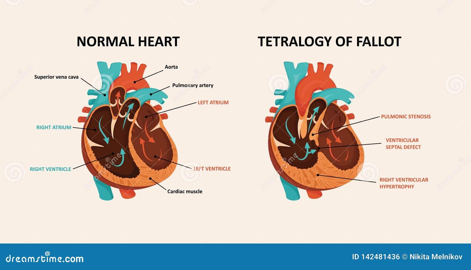 Congenital Disease Of The Heart Stock Vector   Illustration of ...