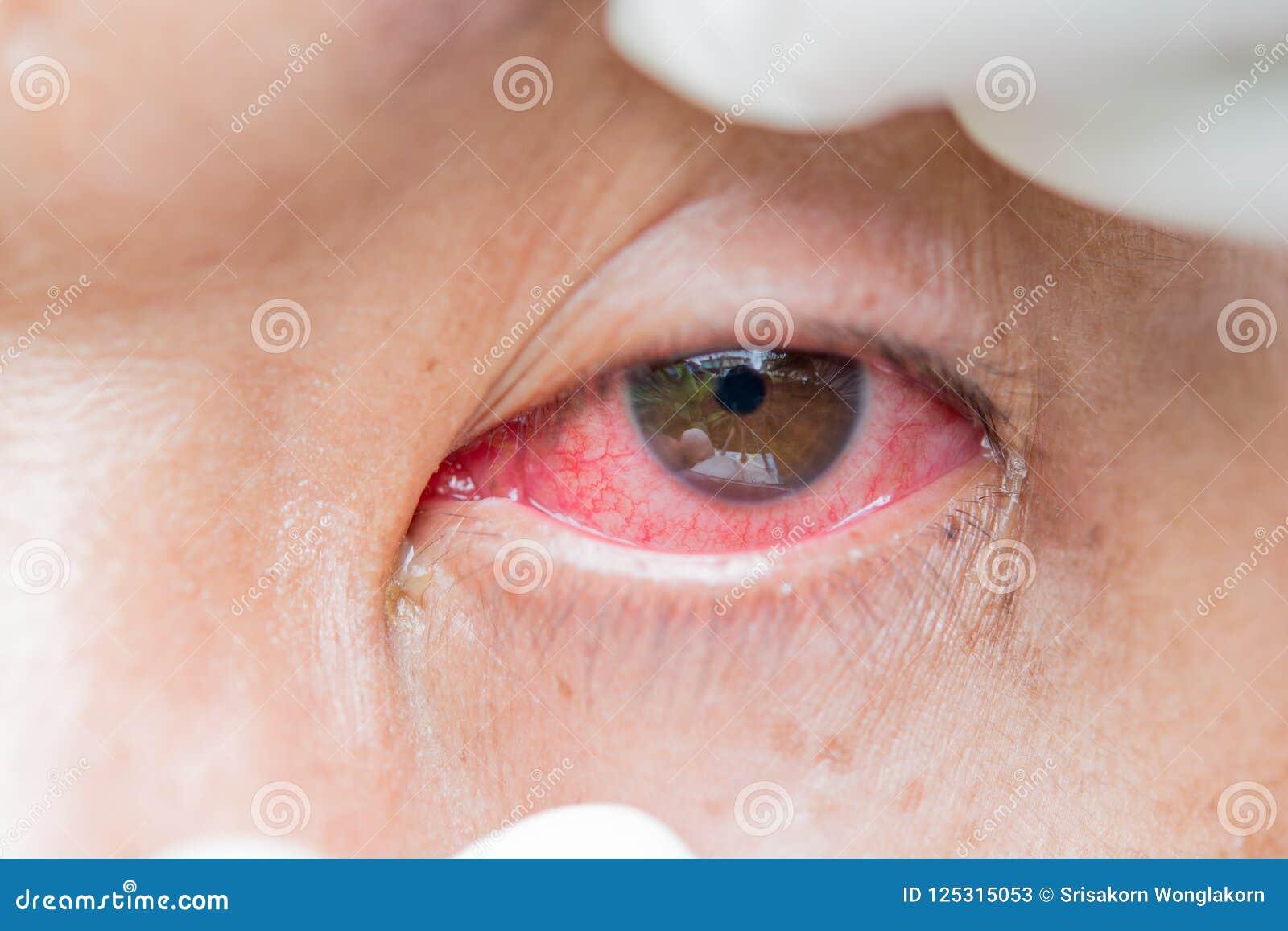 Conjonctivite Et Inflammation Dans Les Yeux Image stock - Image du ...