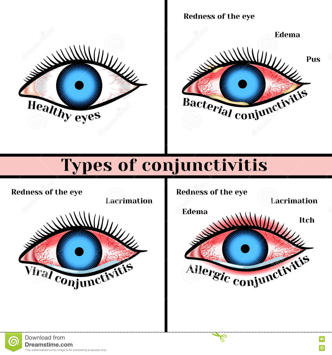 Allergic Conjunctivitis Vs Bacterial Pictures To Pin On: Conjunctivitis Types. Inflammatory Diseases Of Eyes Stock