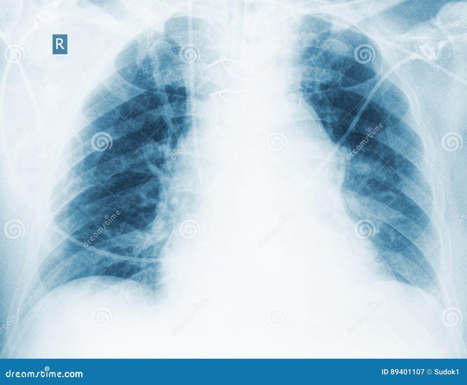 Controle radiológico da pneumonia hipoestática