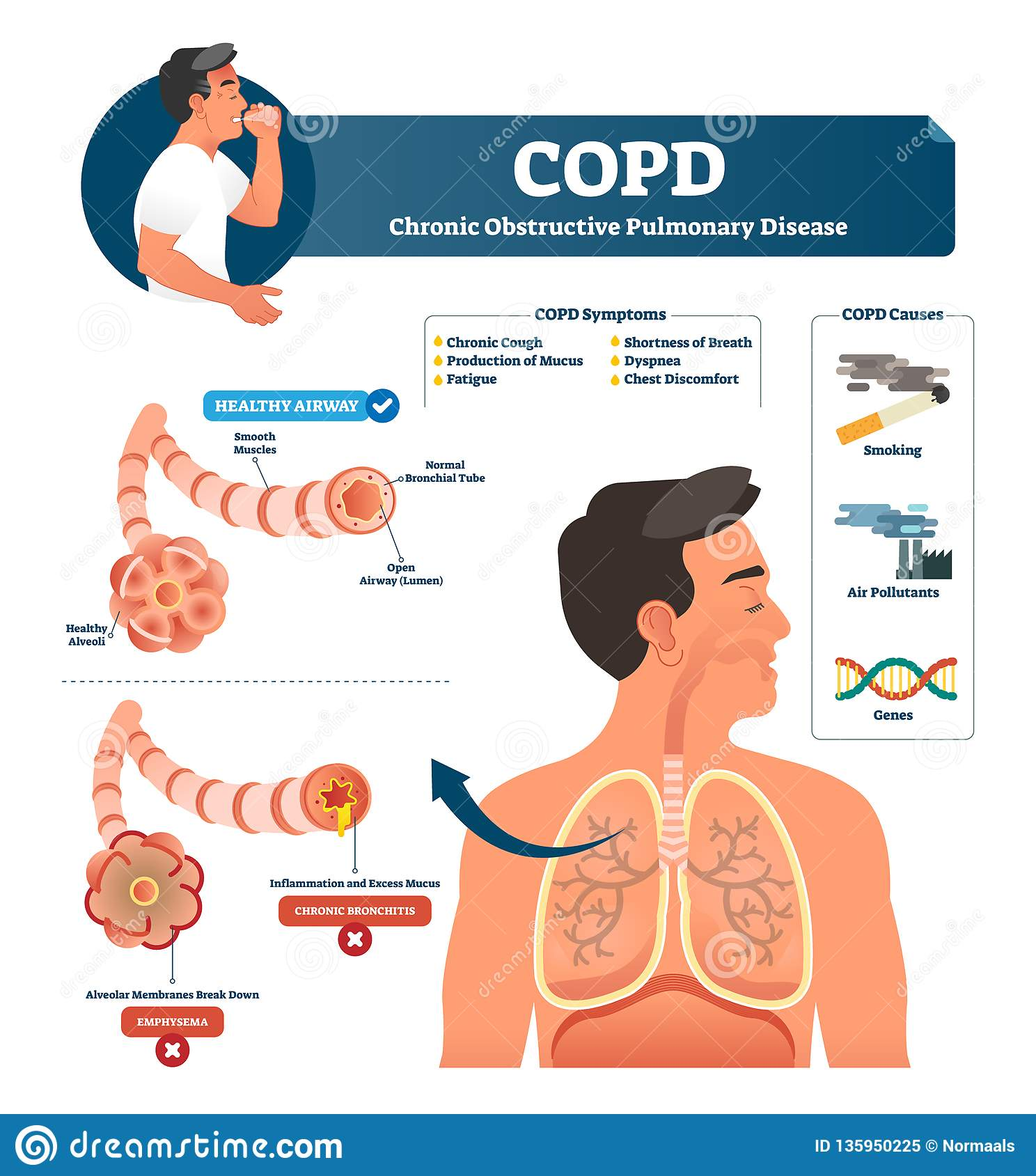 Copd Vector Illustration  Labeled Chronic Obstructive