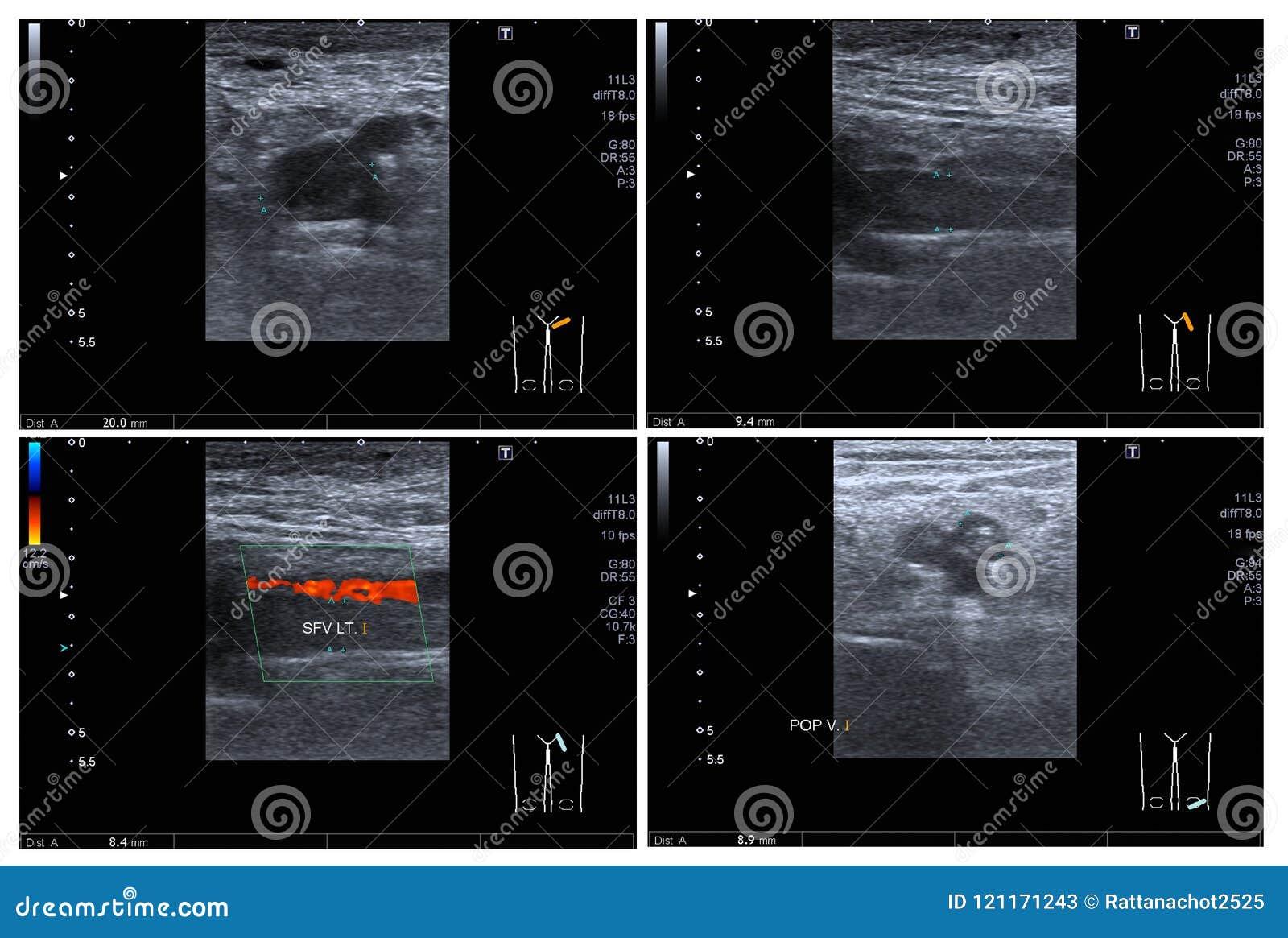 Fotos pés diabéticos