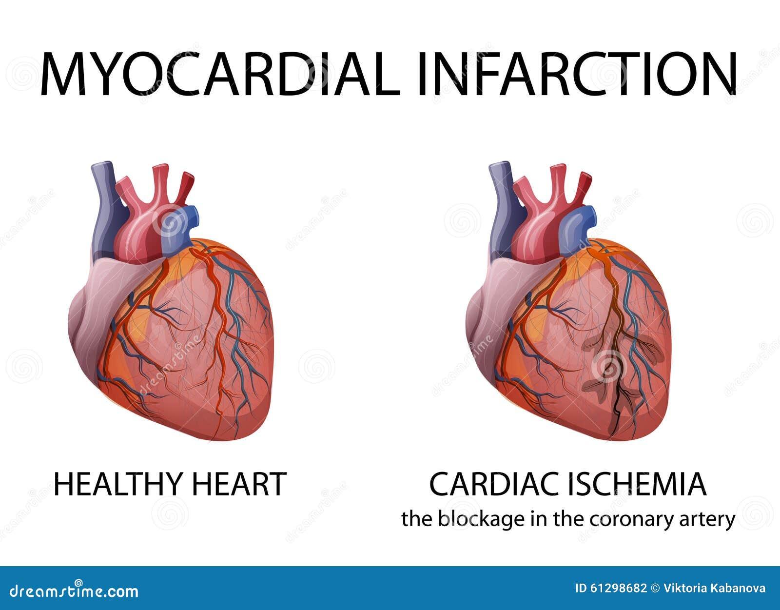 Corazón Infarto Del Miocardio Ilustración del Vector - Ilustración ...