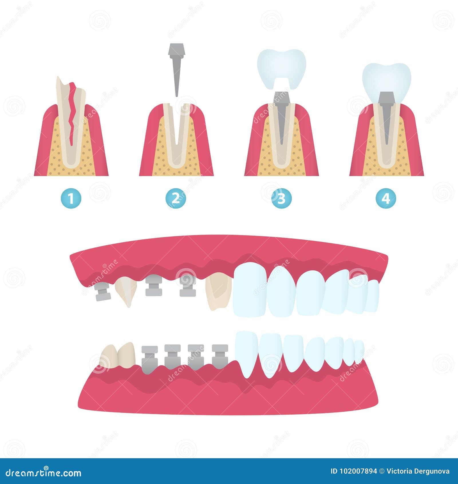 Coroas dentais e implantação