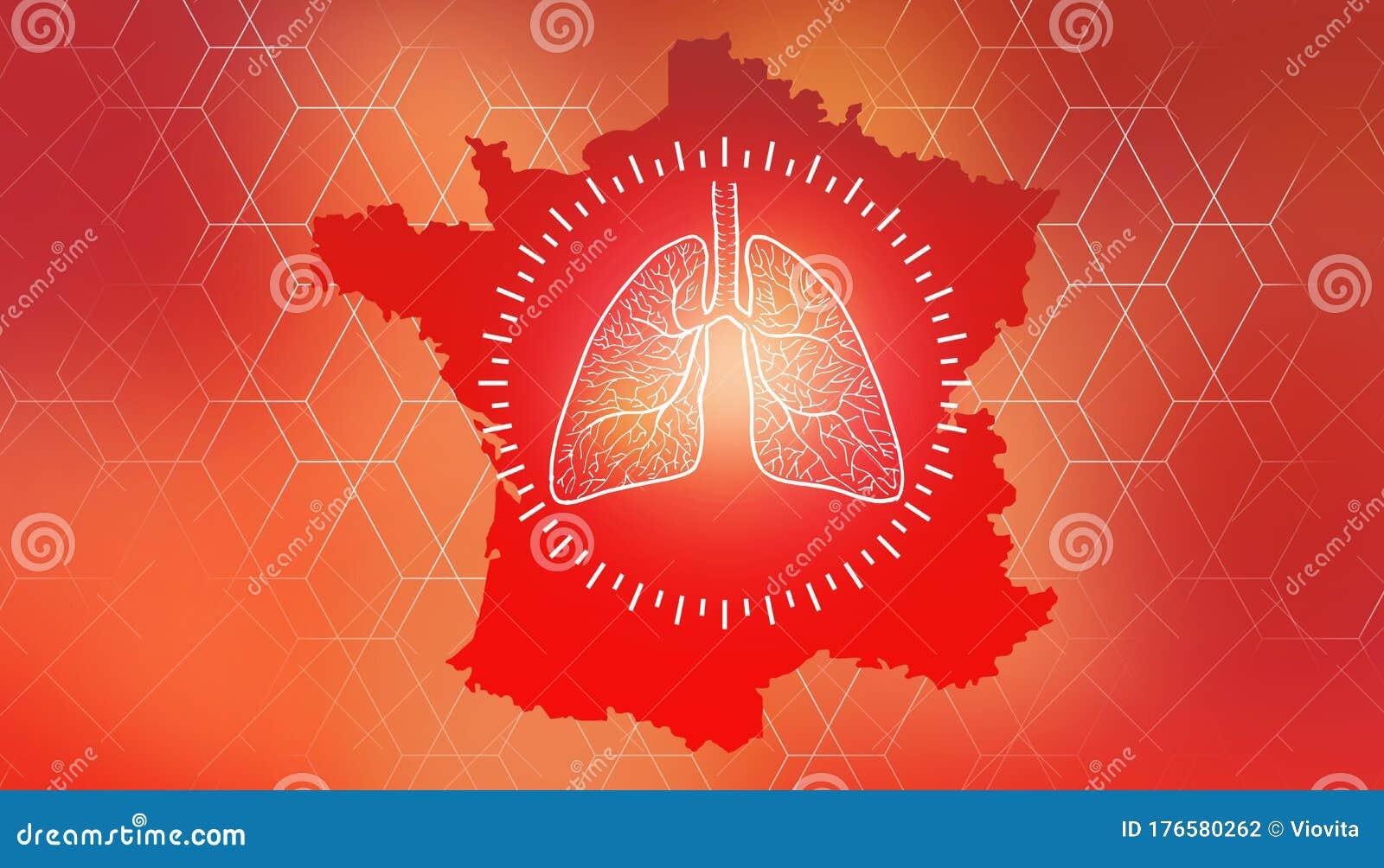 Coronavirus COVID-19 France Country Map. Design Banner ...