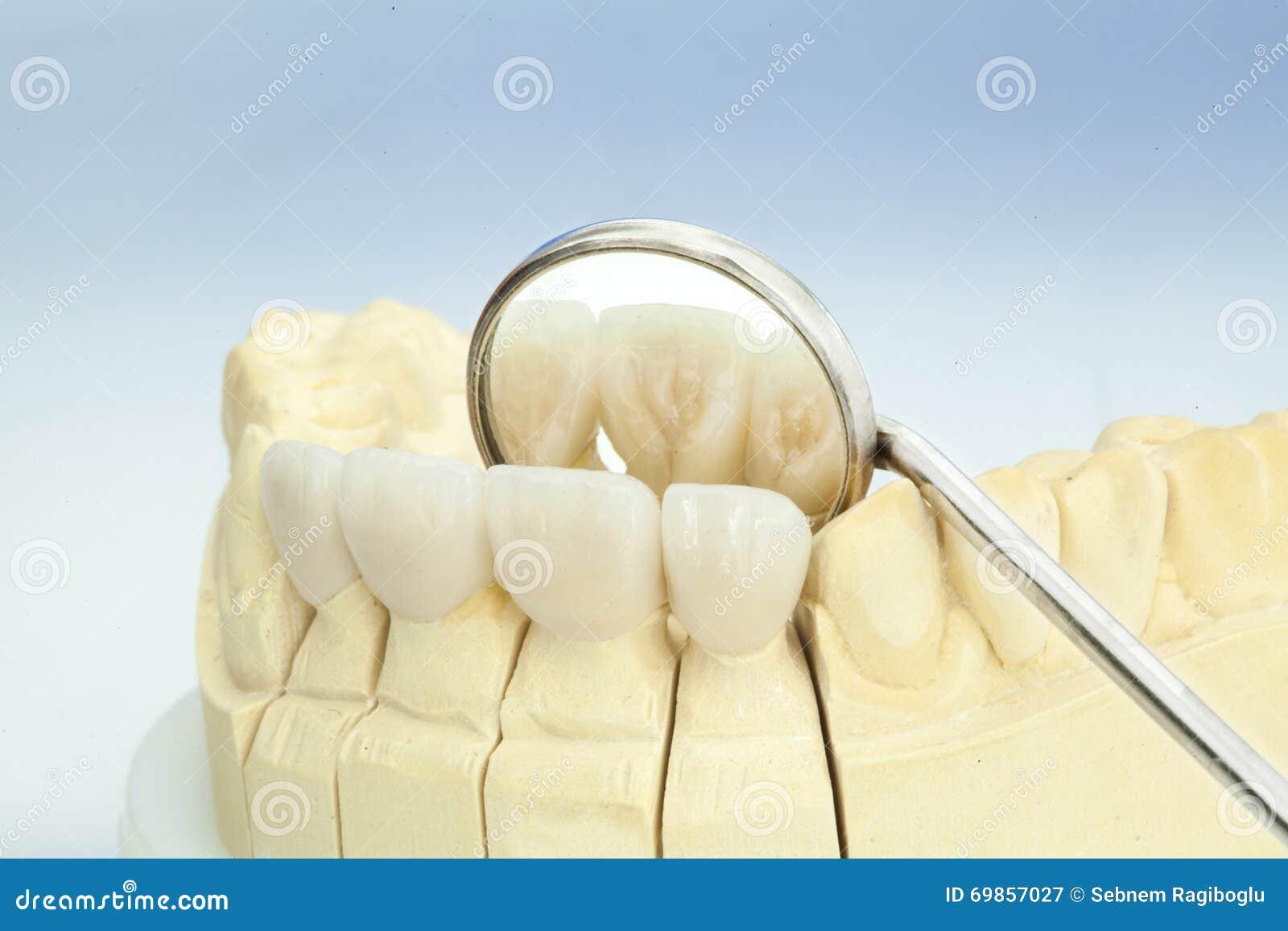 Corone dentarie ceramiche libere del metallo