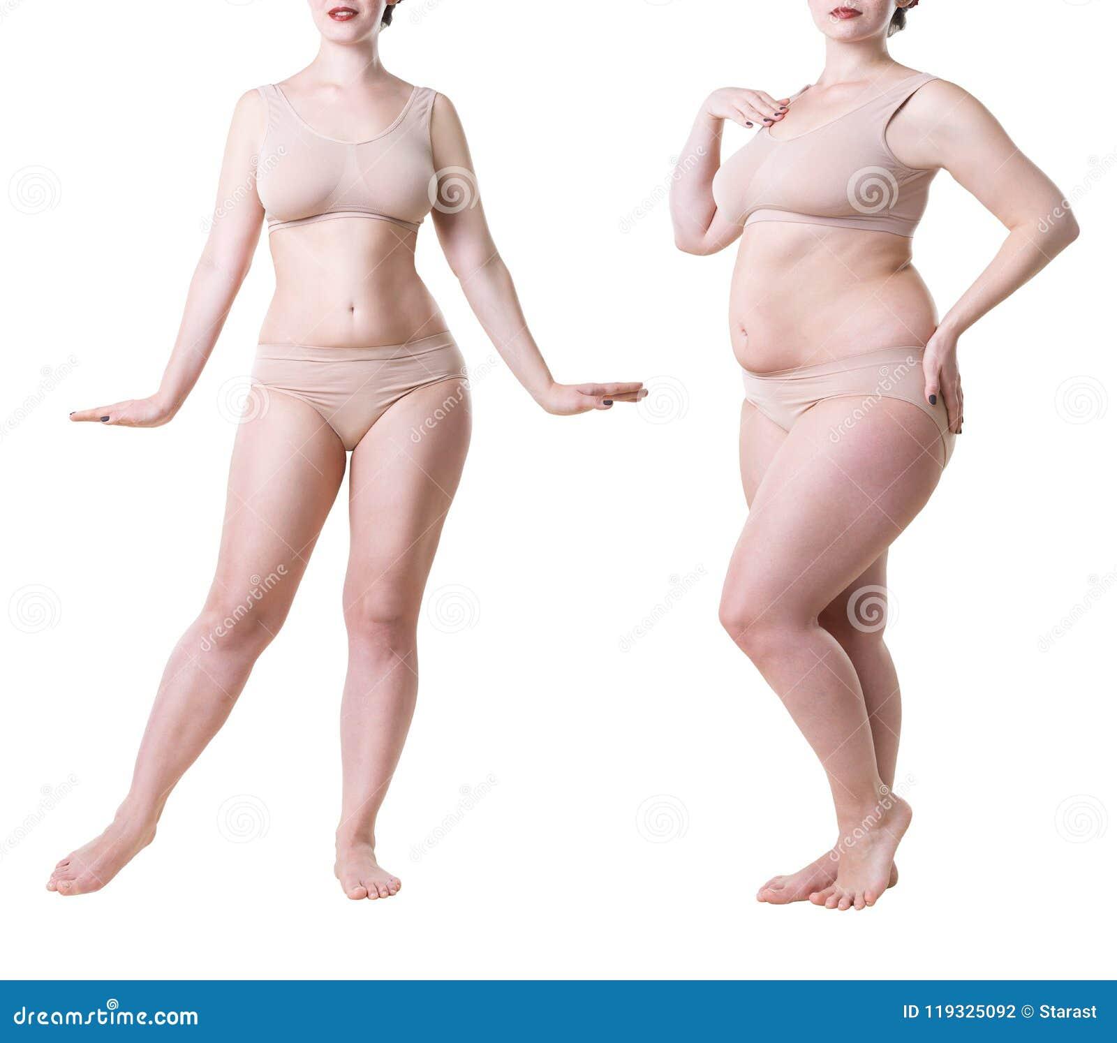 chirurgia e perdita di peso