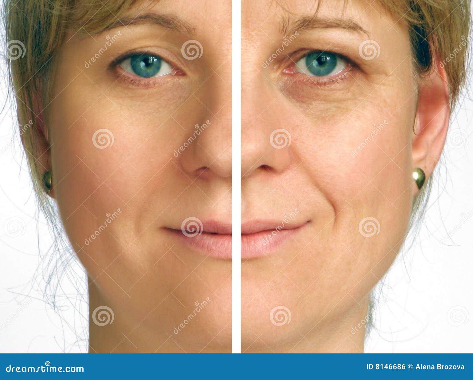 Correctie van rimpels - de helft van gezicht