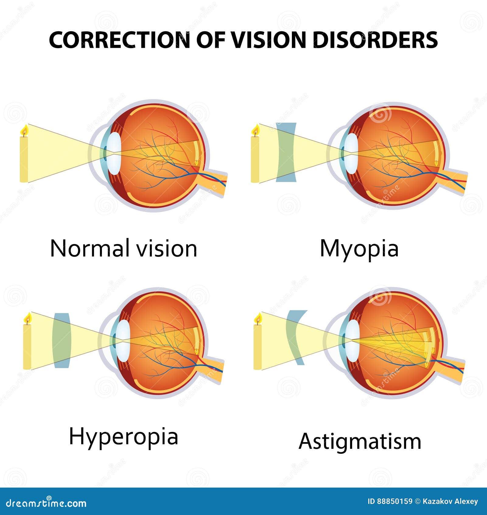 myopia asztigmatizmus hyperopia látássérült termékek