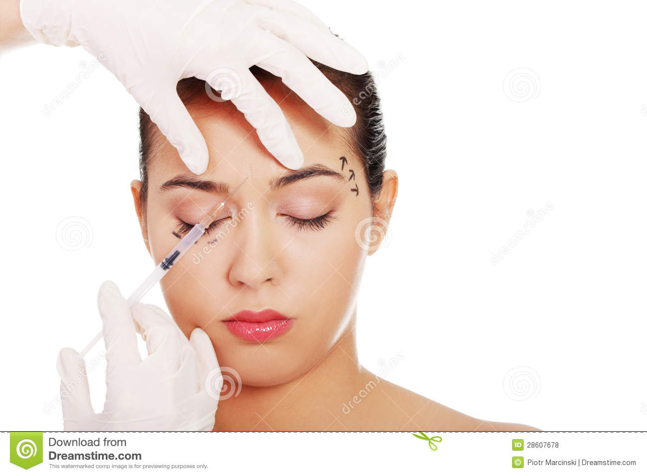 Royalty Free Stock Photos: Cosmetic botox injection in the female face