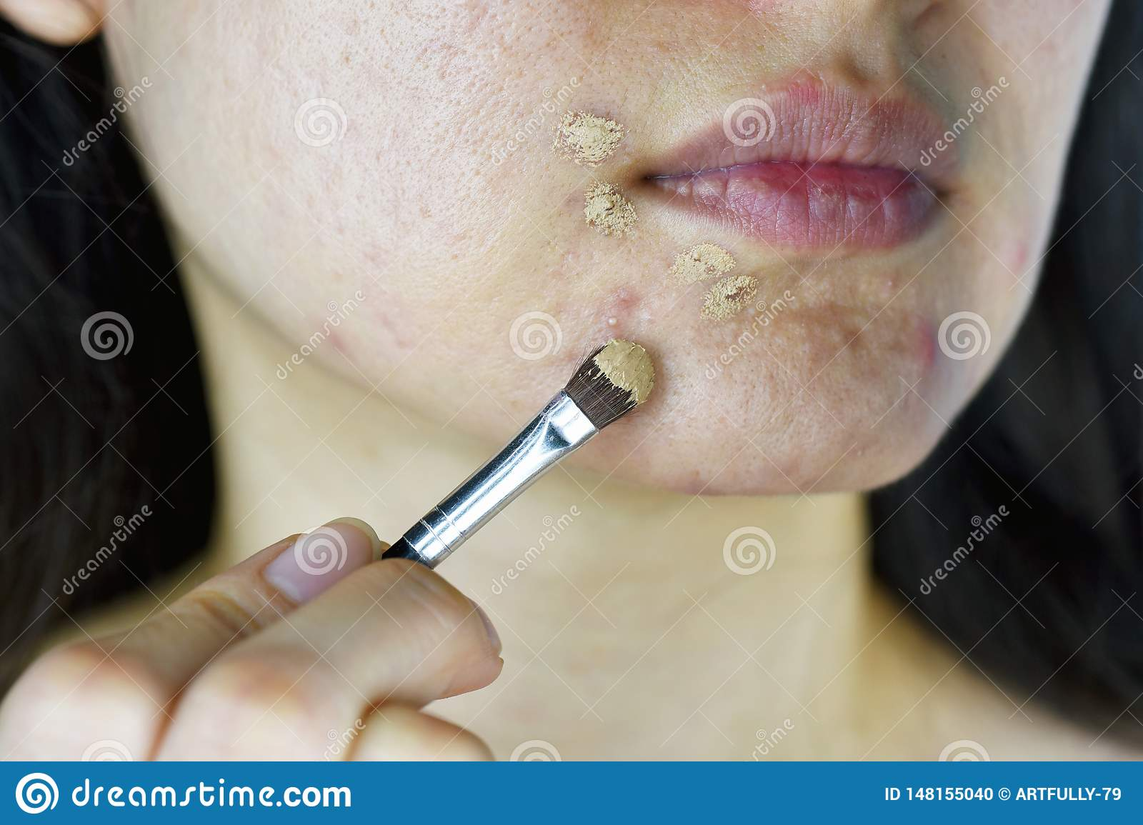 Cosmetics acne, Asian woman applying concealer makeup to hide acne facial skin problem.
