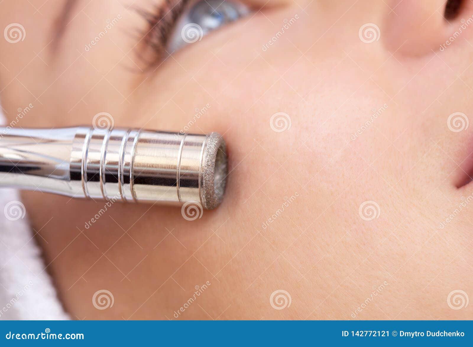 Cosmetologist делает процедуру Microdermabrasion лицевой кожи красивого, молодой женщины в салоне красоты