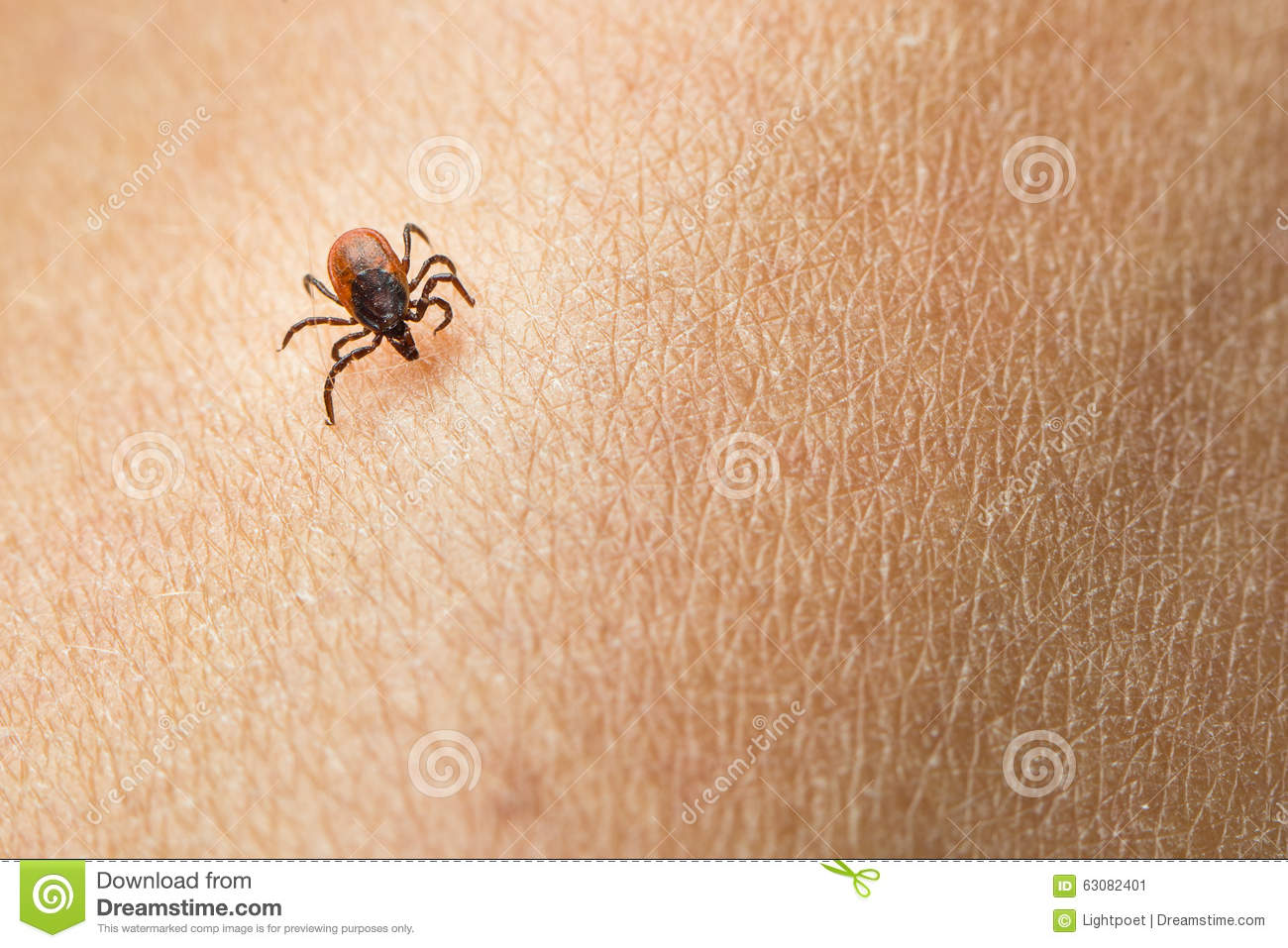 Download Coutil image stock. Image du infection, deer, lyme, humain - 63082401