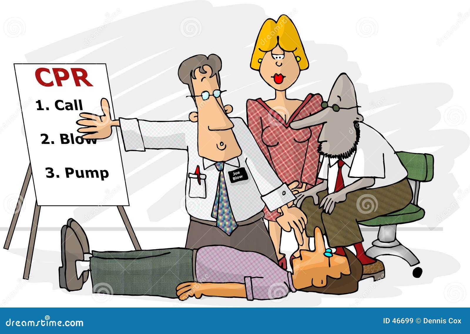 CPR technique