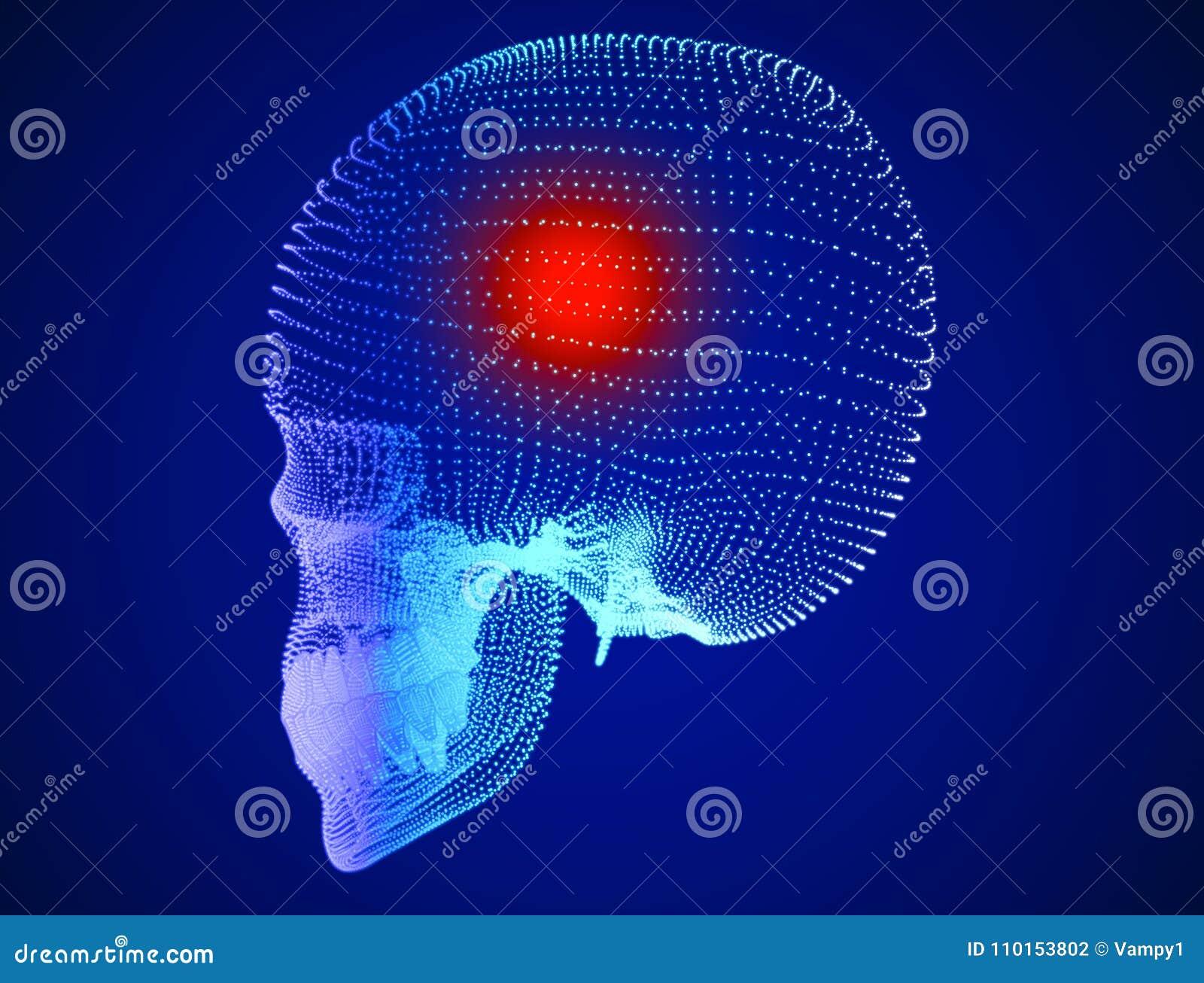 Circuito Neuronal : Cráneo dolor dolores de cabeza neuronas sinapsis red neuronal