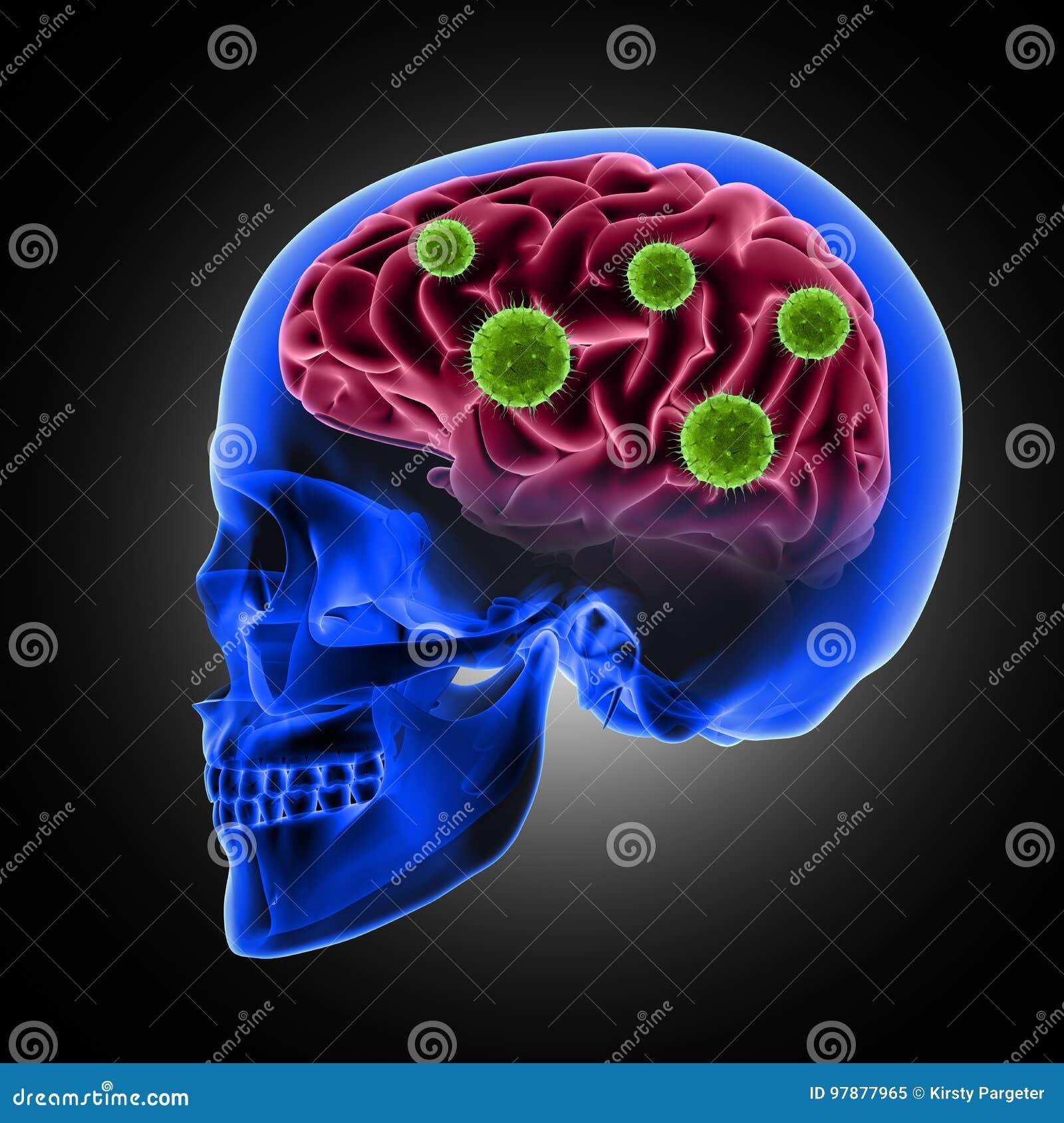 Cráneo Masculino 3D Con Las Células Del Virus Que Atacan El Cerebro ...