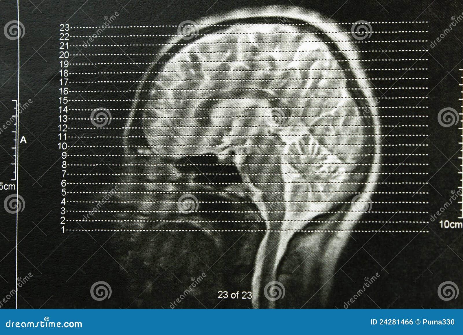 Cráneos de la radiografía de EEG