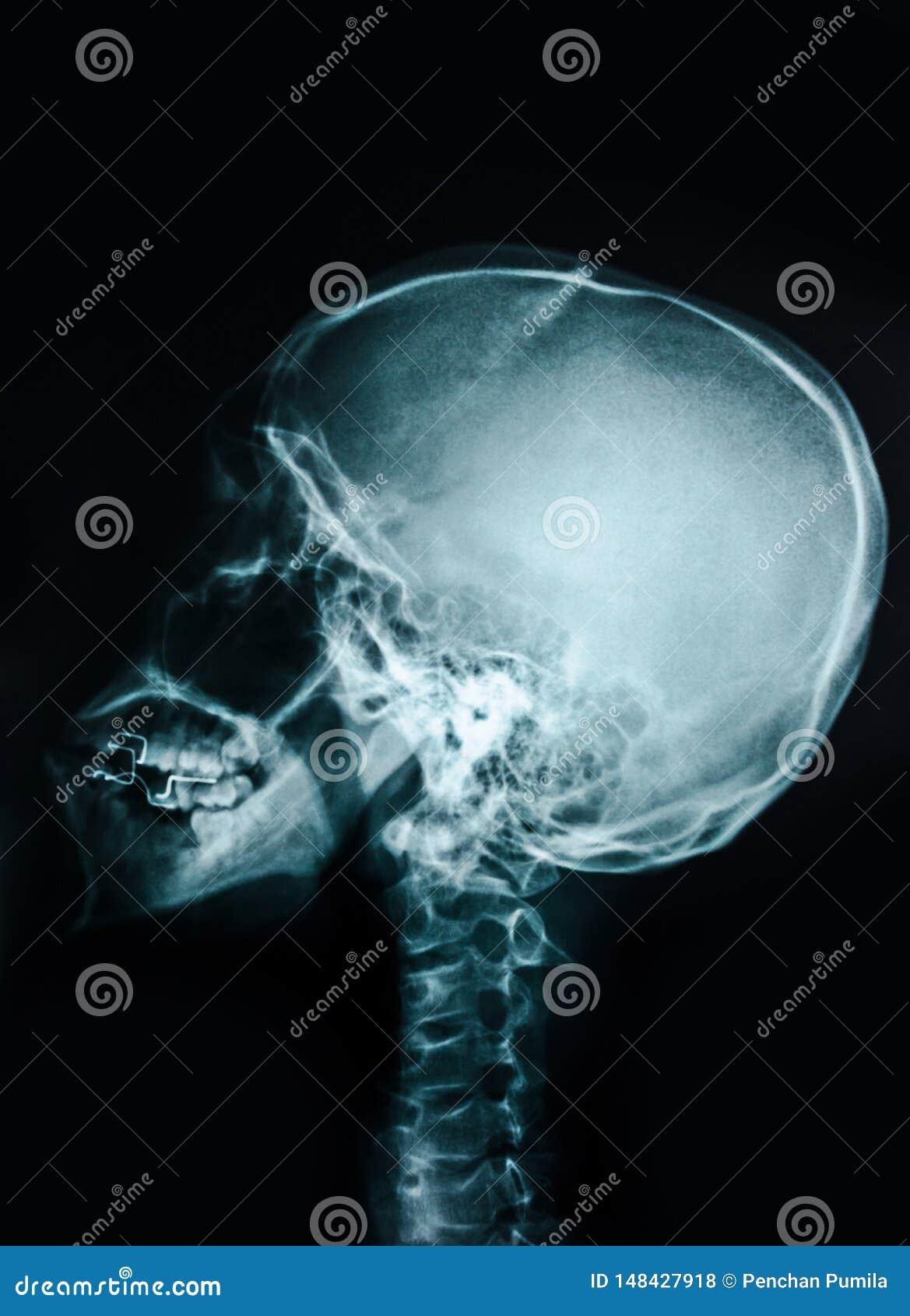 Cr?ne de rayon X de film