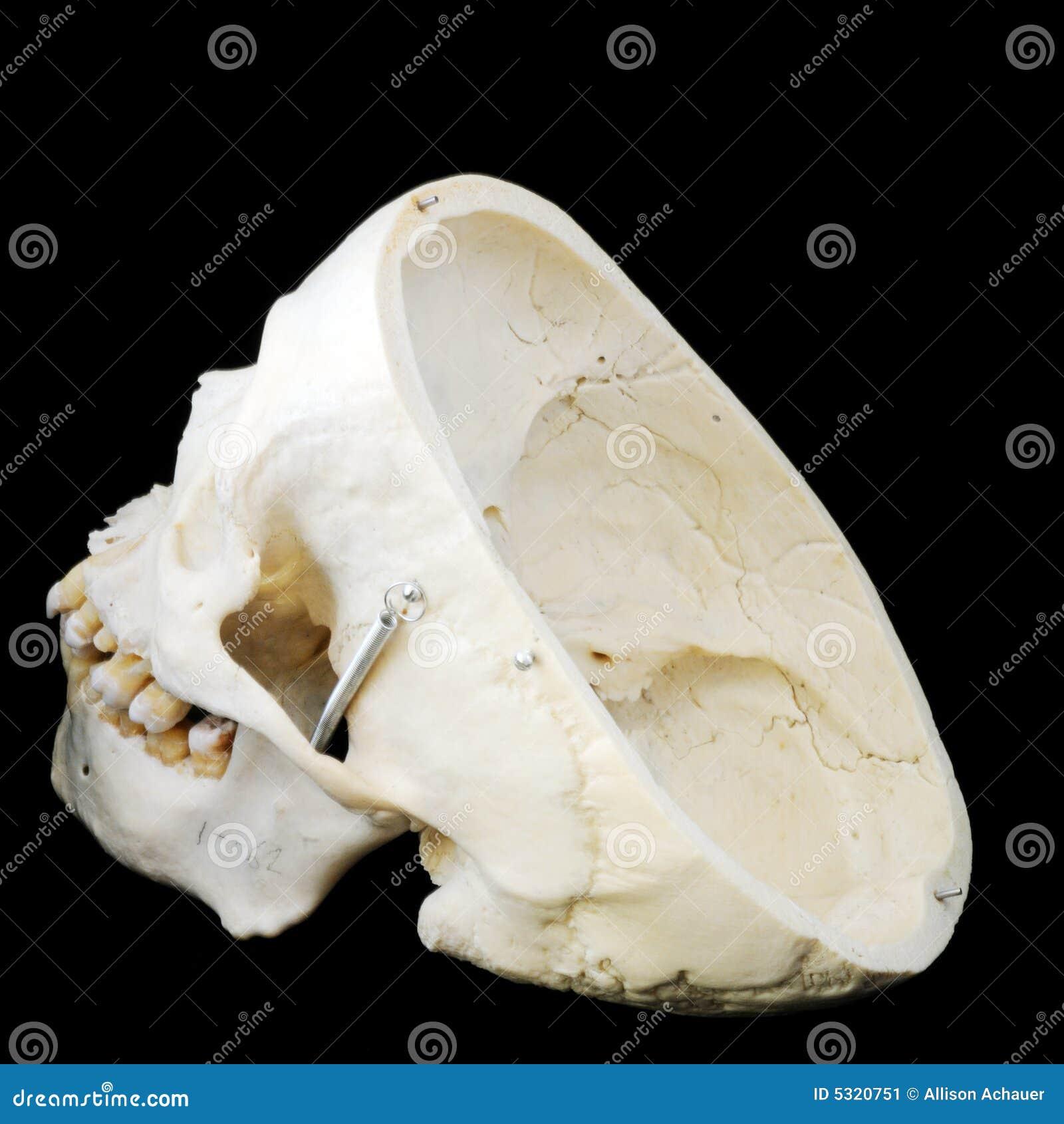 Download Cranio Laterale Umano Posteriore Immagine Stock - Immagine di anatomico, rammarico: 5320751