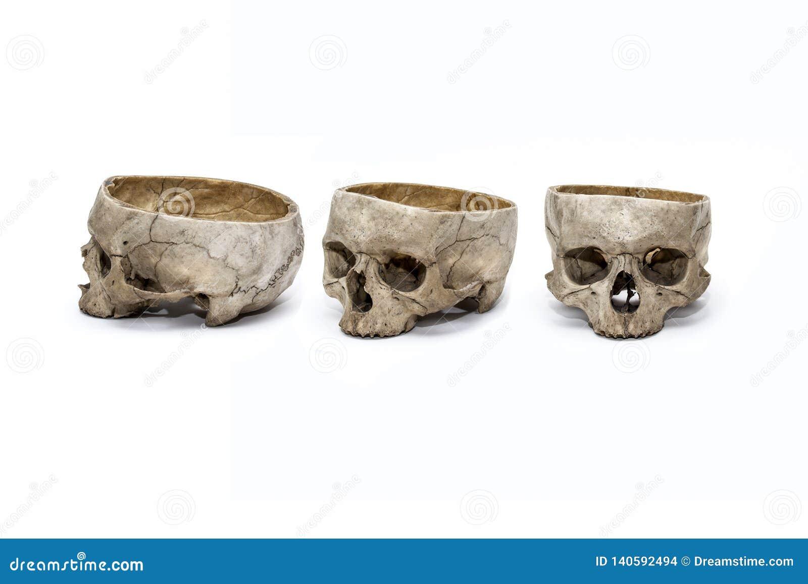 Cranio umano in tre posizioni