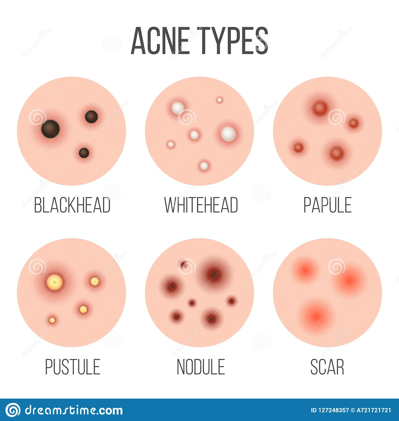 Creative vector illustration types of acne, pimples, skin pores, blackhead, whitehead, scar, comedone, stages diagram