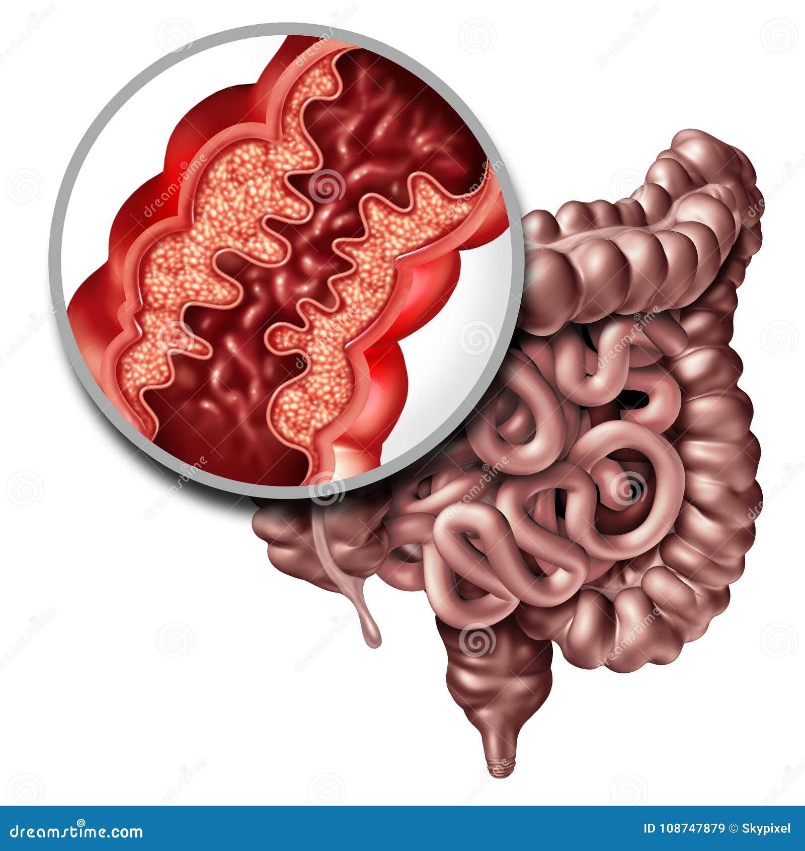 Crohn ιατρική ασθένεια ασθενειών