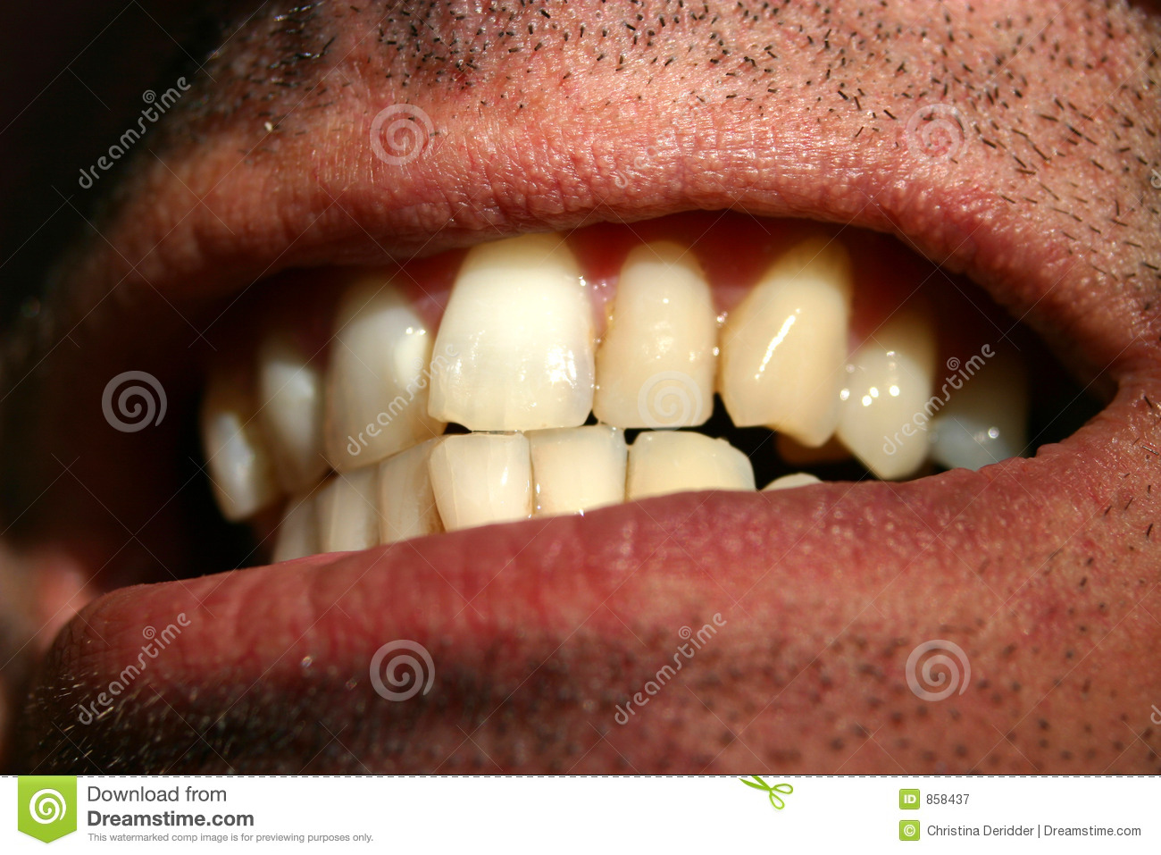 crooked teeth royalty free stock photography image 858437