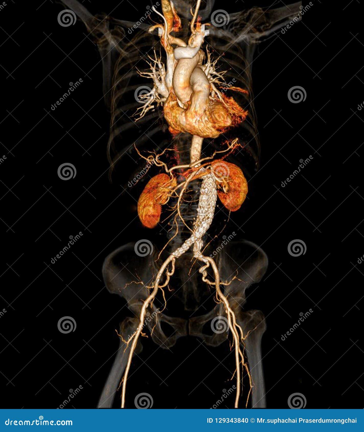 CT angiographphy van de slagaders in het gehele lichaam