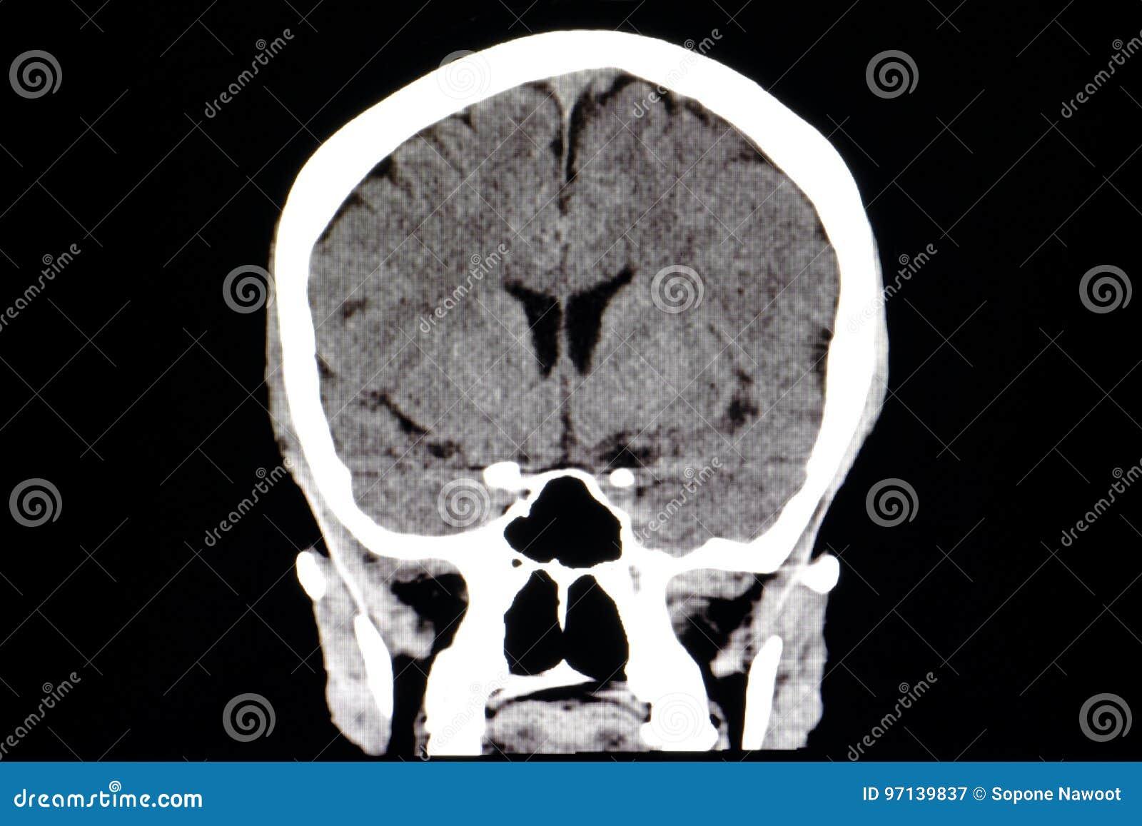 CT Brain stock image. Image of callosum, anatomy, skull - 97139837